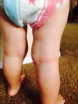 Two Year Old Post Eczema After Nutritional Work w/ Dana